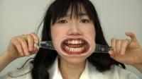 歯観察 インレー3本