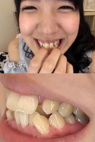 牧野れいなちゃんの歯・口内自撮り(通常版+3D)