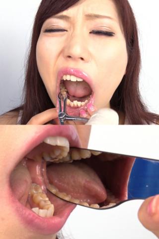 結衣ちゃんの歯観察。左上6番に銀歯発見!