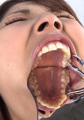 歯 観察     水谷杏