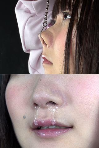鼻観察・くしゃみ鼻水    美咲