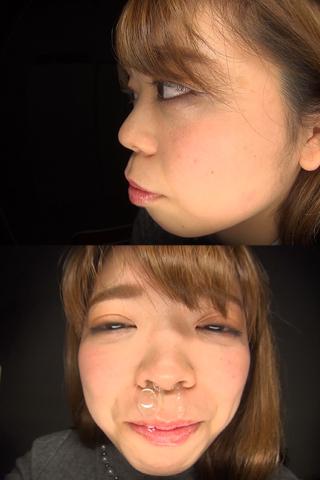 【鼻】鼻観察〜くしゃみ鼻水 なつみ