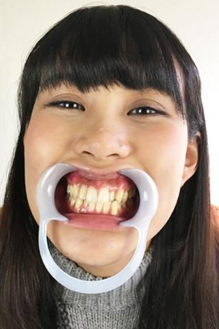 ことみちゃんの歯観察&歯磨き