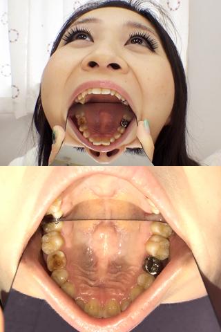 凛ちゃんの放置崩壊歯をいじくってみた
