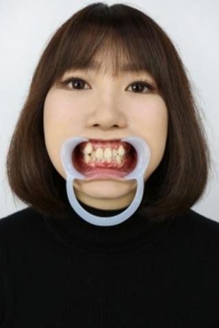 【歯観察】みなみちゃん(25歳)