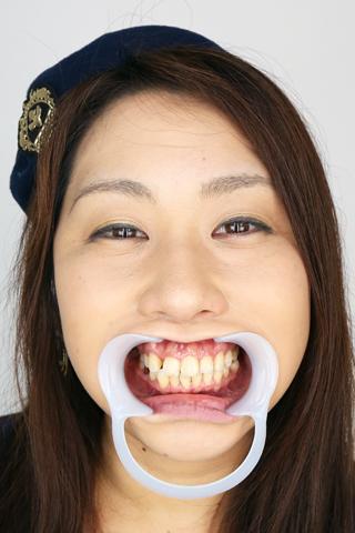 【歯観察】れいなちゃん(36歳)