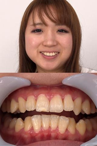 寧々ちゃんのネバネバ系の歯