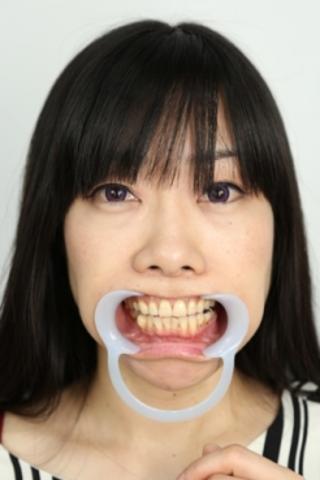 【歯観察】怜ちゃん(44)インレー3本にガルバニー電流でお仕置き!