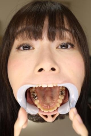【歯観察】たえちゃん(22)インレーは3本だと思っているが実は4本だった!