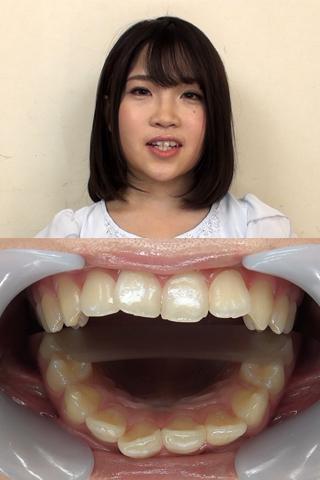 【歯観察】しずくちゃん(20)観察ついでに咀嚼もお願いしました!