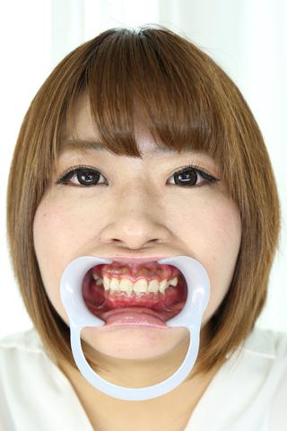 【歯観察】桜ねね(23)虫歯の巣窟!久々の複数崩壊歯に縁下歯石のコラボレーション!!