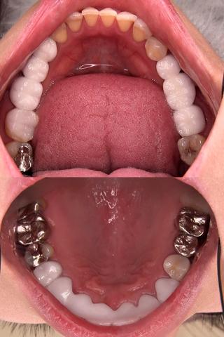 【歯観察】まさみさん(30)銀歯&セラミックだらけの口内は必見!