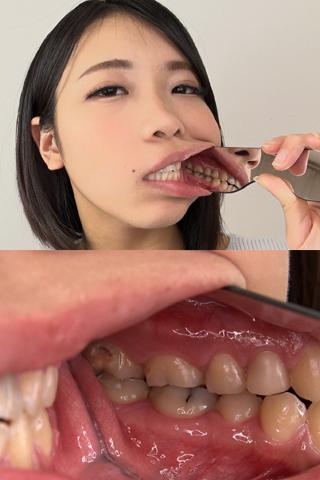 【歯観察】楓果ちゃん(23)ステインびっちりと思いきや崩壊歯へまっしぐら!
