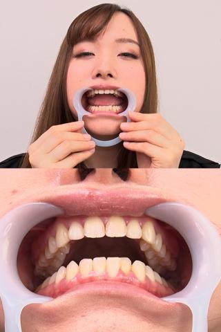 【歯観察】琴菜ちゃん(23)の歯をじっくり観察
