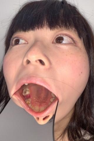 【歯観察】姫花ちゃん(24)すでに残り23本!虫歯の巣窟!!