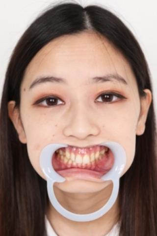 【歯観察】花音ちゃん小さなお口を抉じ開けたその奥には…