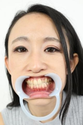 Iカップお嬢様の気になるお口の中は…奥歯に虫歯【特典映像:のどちんこ観察】