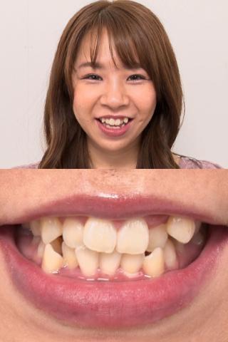 下左奥にフルクラウン発見!!八重歯娘、真白わかなの歯観察【特典映像:のどちんこ観察】