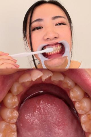 歯並び悪くても歯には気を使ってます。ほのかの歯観察【特典映像:のどちんこ観察】