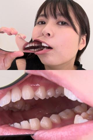 歯美少女アリスの歯観察【特典:のどちんこ鑑賞】