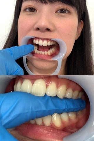 【歯&のどちんこ観察】笑顔からこぼれる白い天然歯の花井しずくちゃん(23)に噛まれたい