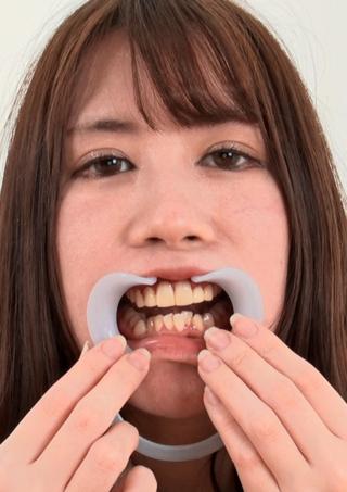 【歯観察】前歯4本全部セラミック治療 かれんのお口の中~咀嚼観察