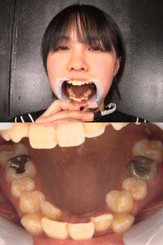【歯観察】八重歯美女のクラウンみっけ!! 田嶋まお