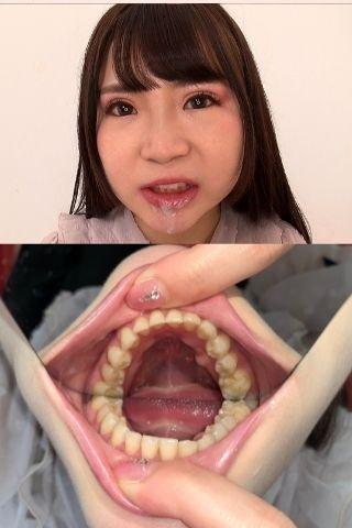 綺麗な歯並びももかちゃんの歯観察~くちゃくちゃ咀嚼後に歯磨き~