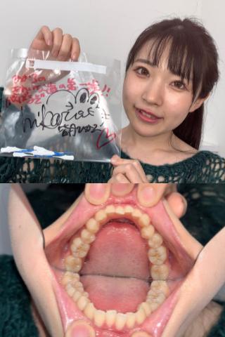 【完売御礼】皆月ひかるの歯間ブラシ