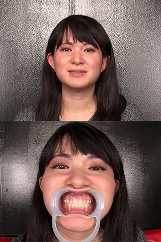 上の歯が2本少ない上に奥歯に崩壊歯予備軍発見!?大量唾液滴る歯 &のどちんこ観察 大橋るか(25)