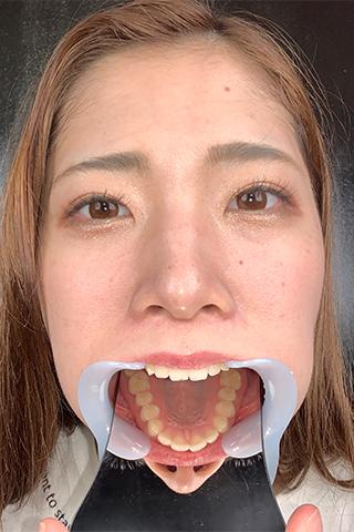 【歯&のどちんこ観察】自由奔放なのに何この天然歯!!沙耶(21)の理想的な口内