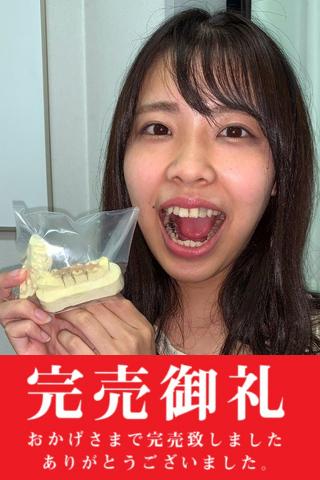 【歯フェチLABO連動企画】永野楓果 銀歯4連歯型~1週間装着した詰め物を添えて~