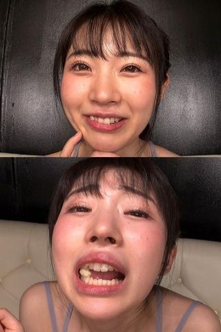 【虫歯治療のその後】『奥歯が痛いんですぅ』と嘆く皆月ひかるの歯をあの手この手で攻めてみた。