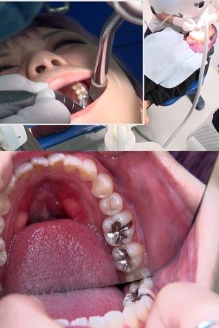 【虫歯3箇所銀歯治療】銀歯さんいらっしゃい!!左上6番左下6番7番に初の銀歯を装着するまやちゃん(24)