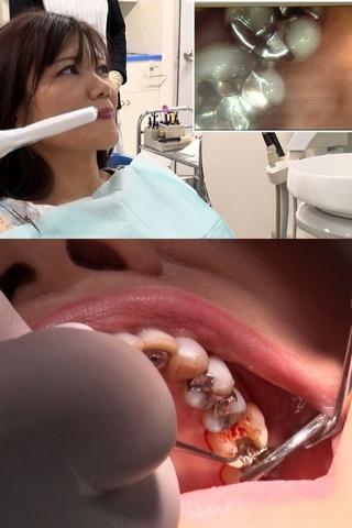 幼少期のトラウマで歯医者嫌いの真矢あかり(47)20年ぶり!?の銀歯交換治療