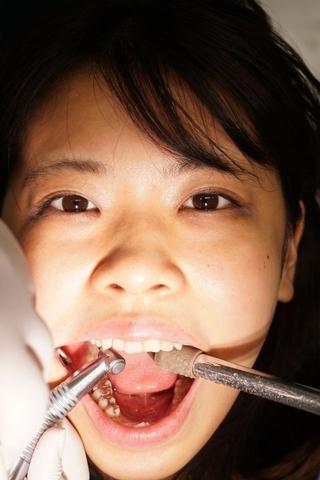最終日は神経喪失スレスレの大虫歯含む4箇所治療!永野楓果(25)合計22カ所の虫歯治療の結末
